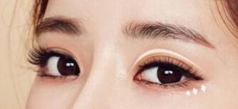 開內眼角手術大概需要多少錢呢?