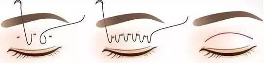 埋線雙眼皮手術注意哪些后遺癥風險?