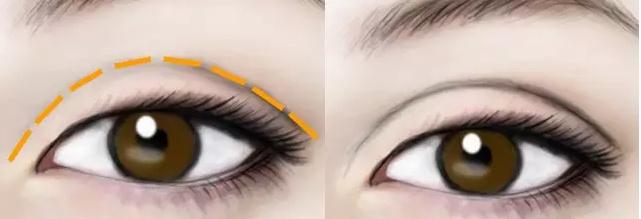 埋線雙眼皮的優勢有哪些