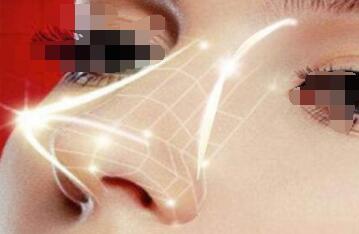 假體隆鼻讓你擁有一個高挺的鼻子