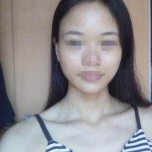 注射美白30天,皮肤整个都提亮了