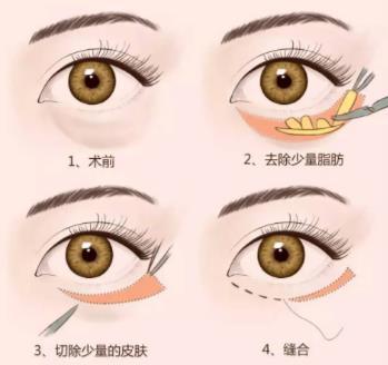 广州荔湾祛眼袋方法有哪些