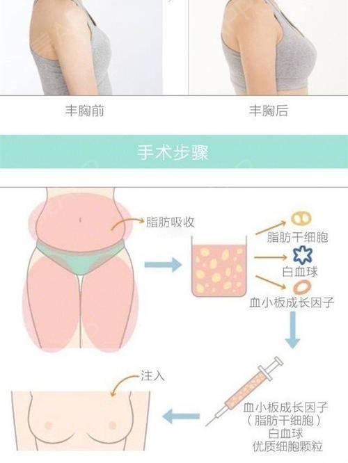 南京艺星自体脂肪隆胸的好处是什么