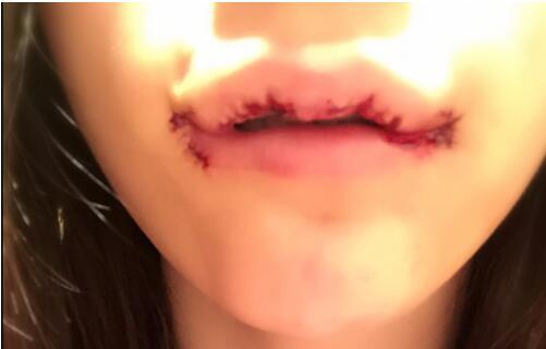 M唇成形术术后60天