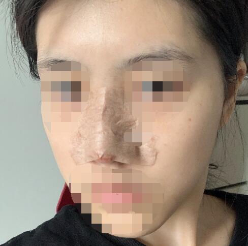 鼻综合整形术后45天