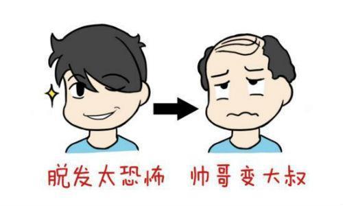 北京煤炭植发后是否还会脱发