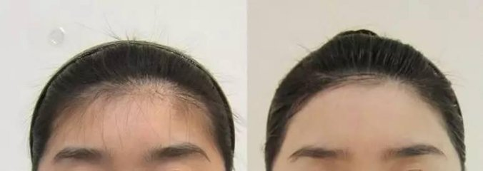 南京艺星发际线脱毛要多少钱
