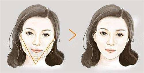 下颌角整形让你实现瓜子脸