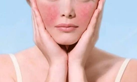 淄博激光祛红血丝对皮肤有危害吗