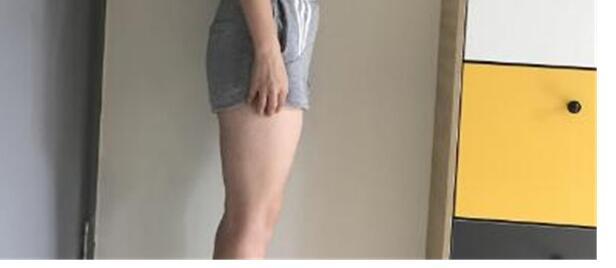大腿吸脂术后九十天