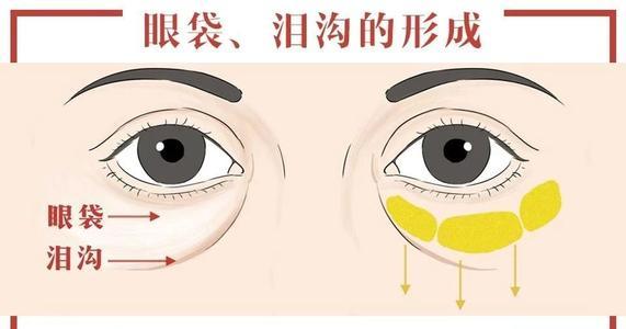 祛眼袋失败修复方法有哪些呢?