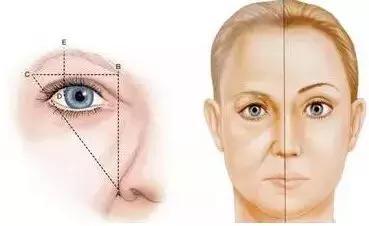 做了提眉术多久可以画眉毛?