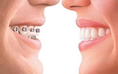 广州荔湾牙齿矫正术,重获自信其实很简单
