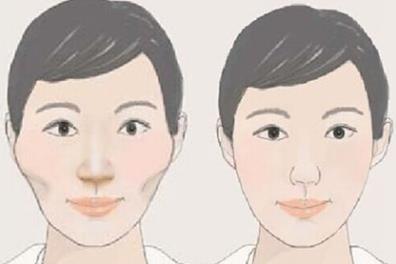 广州荔湾特色项目——精准面部轮廓改脸型