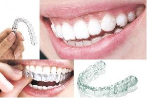 北京煤炭烤瓷牙给你洁白牙齿,不一样的笑容力量