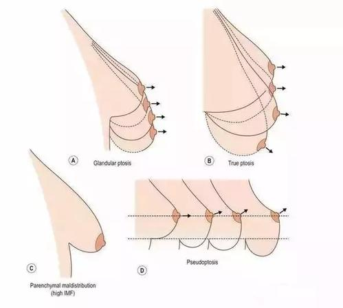 济南瑞丽乳房下垂矫正手术