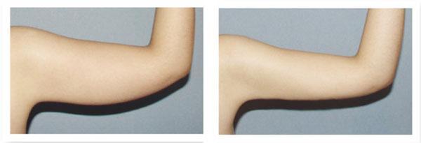 济南瑞丽手臂吸脂有哪些优势