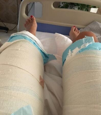 腿部抽脂,已经成功减掉我的大粗腿了,术后恢复分享