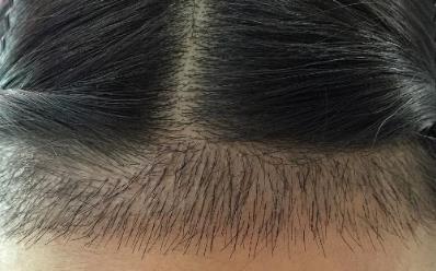 想要完美发际线选择济南瑞丽种植发际线