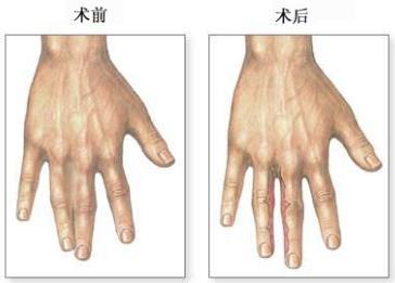 广州荔湾并指分离术的合适年龄