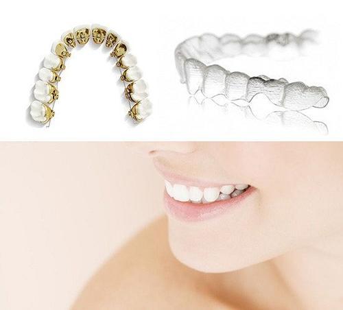 济南瑞丽牙齿矫正方法有哪些