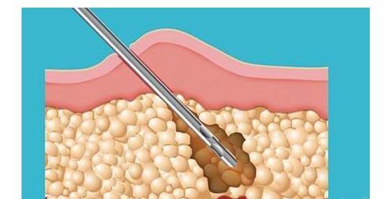 面部做吸脂手术和光纤溶脂哪个恢复更快?