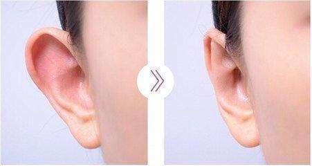 长沙雅美招风耳矫正手术会留下疤痕吗