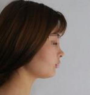 自从做了鼻整形之后,感觉整张脸的比例都好看了