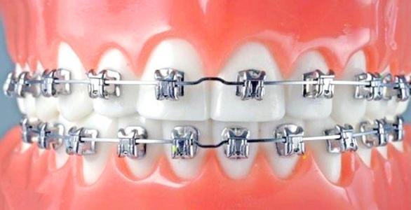 长沙雅美牙齿矫正疼不疼跟哪些因素有关