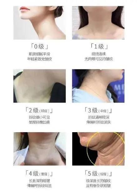 颈纹是怎么产生的
