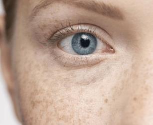 黄褐斑是什么呢?长了黄褐斑怎么医治及除斑偏方大全