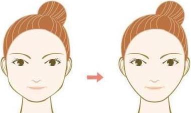 下颌角磨骨会不会留下很大的疤痕?不对称怎么办?