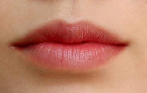 广州南珠唇珠成形术有哪些方式