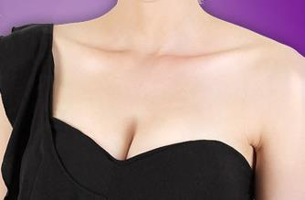 女性该如何选择假体隆胸材料