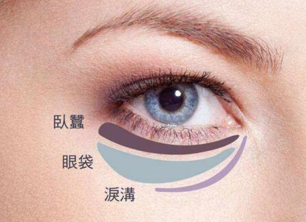 去眼袋的理由是什么?去眼袋的方法有哪些?