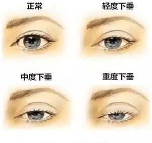 眼睑下垂怎么办?上睑下垂矫正手术是有效的改善眼睑下垂的方法