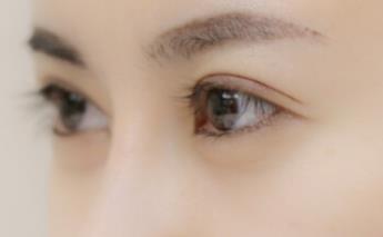 金华玥莱美医疗美容医院全切双眼皮的优点
