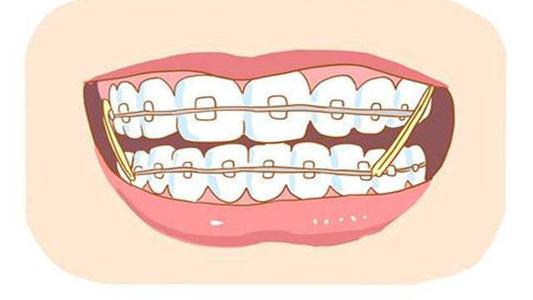 哪些情况适合在杭州静港做牙齿矫正