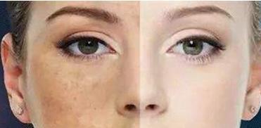 彩光嫩肤有什么作用?彩光嫩肤效果如何?