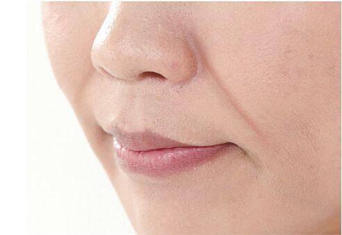 法令纹注射用玻尿酸还是肉毒素哪个好?优点是什么?