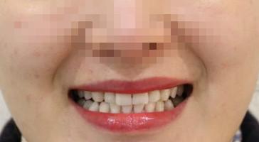 牙齿暗黄就用冷光美白,牙齿美白效果真的肉眼可见