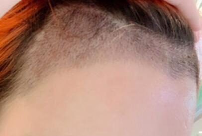 植发美人尖后,现在真的脸型都变了,小一圈!