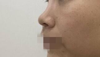 隆鼻整形后,鼻子再也不塌了