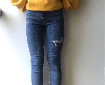 做了大腿吸脂手术后,再也不用担心不能穿短裙了!