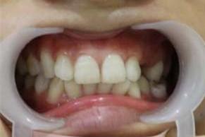 你还在为牙齿参差不齐困扰吗?看看我矫正后的效果吧