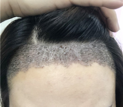 植发际线术后对比效果图