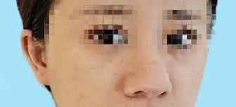 小小隆鼻術,讓我精致又美麗