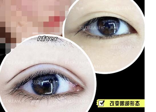Re-sep切開雙眼皮術后術前效果對比,肉眼可見的改變