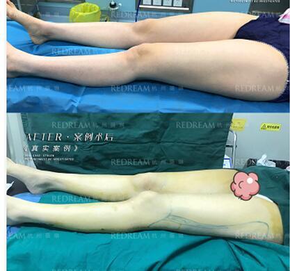 5G天使光雕瘦腿无凹凸不平、0肿胀渗液,效果惊人的好!