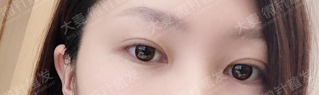 眉毛种植手术后,眼睛神采飞扬,整体气质提升一个档次!